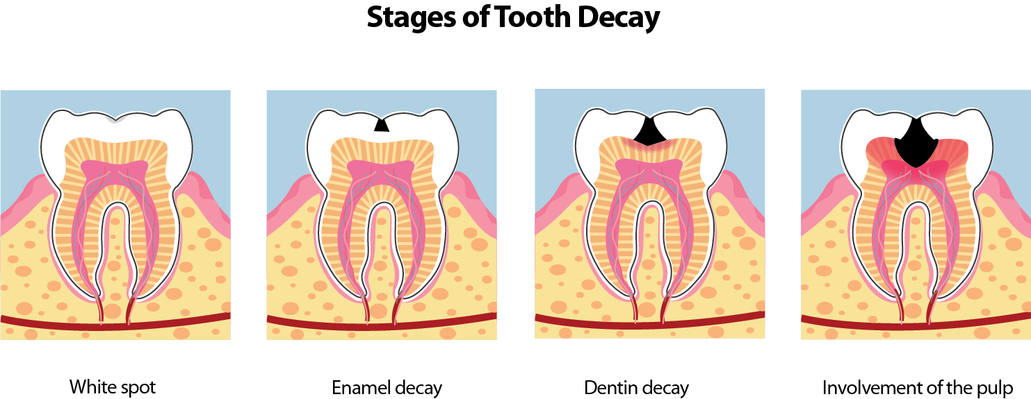 Image showing stages of tooth decay